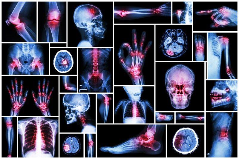 Dr. Vipin Barde: Orthopedic Surgeon in Lodha Palava, Nilje ...