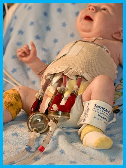 Pediatric Cardiac Intensive Care Unit » Nursing at UF Health ...