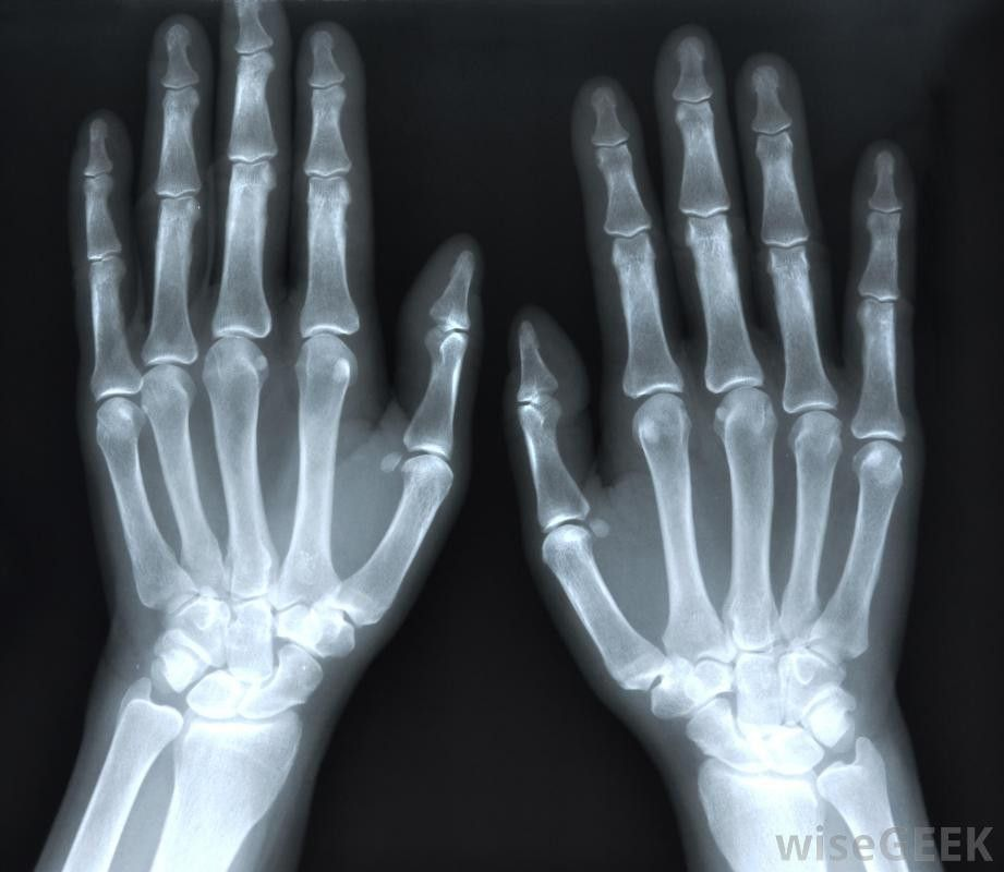 How do I Become a Radiologist Assistant? (with pictures)