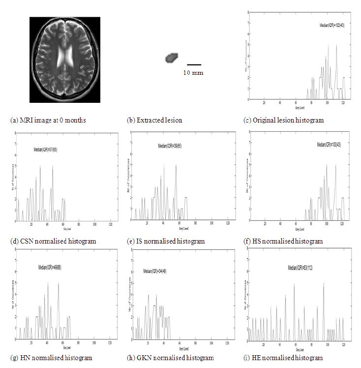 An example of interscan intensity MRI imaging normalization ...