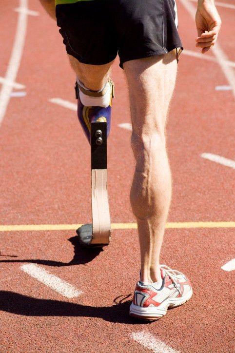 Orthotist and Prosthetist | explorehealthcareers.org