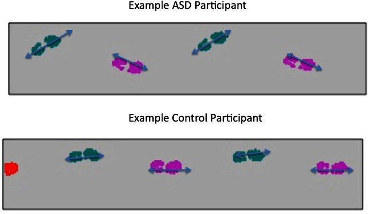 of foot positioning of ASD and Control Group participants.