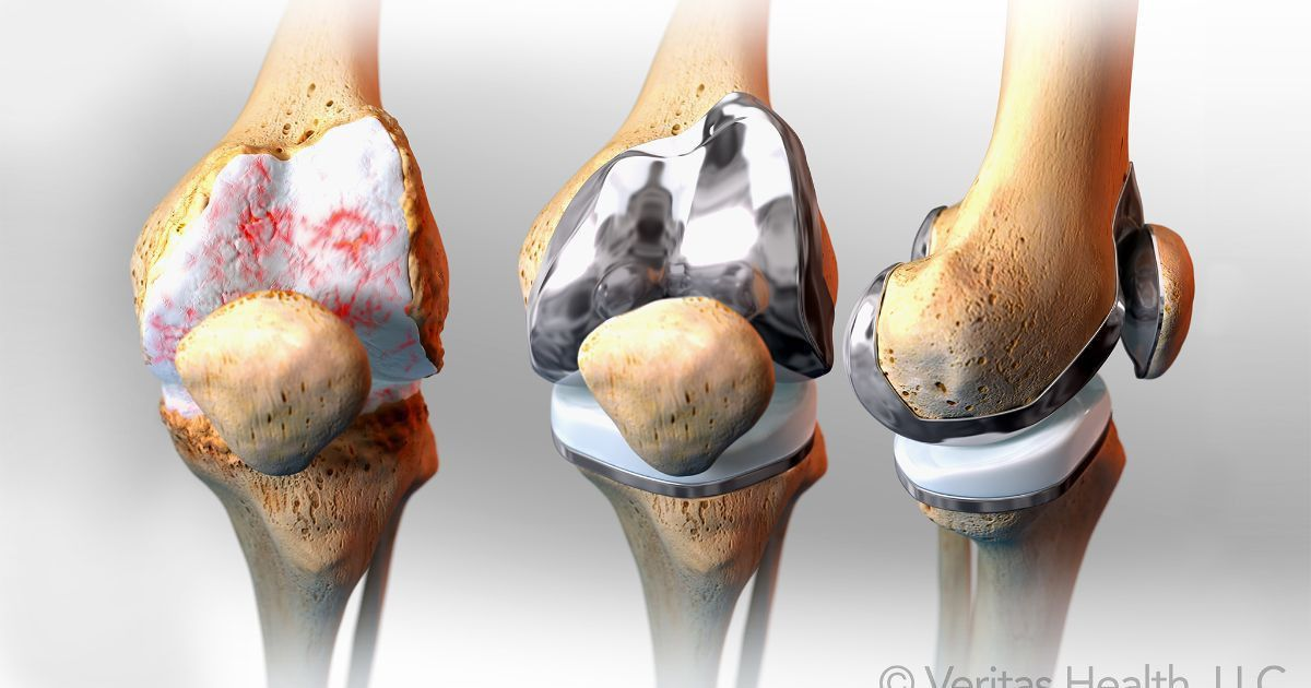 Total Knee Replacement Surgical Procedure