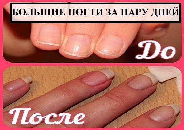 Как отрастить большие ногти за пару дней
