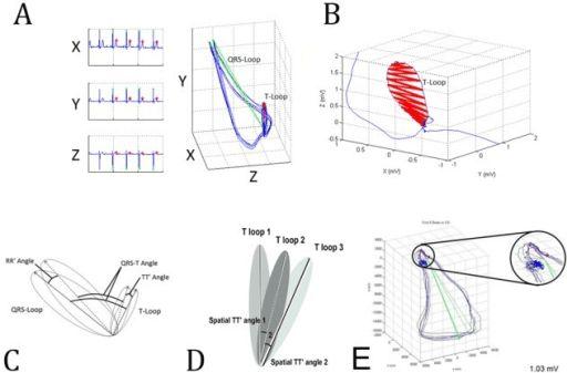 Dynamic VCG (3-dimensional ECG) method.(A) Representati | Open-i
