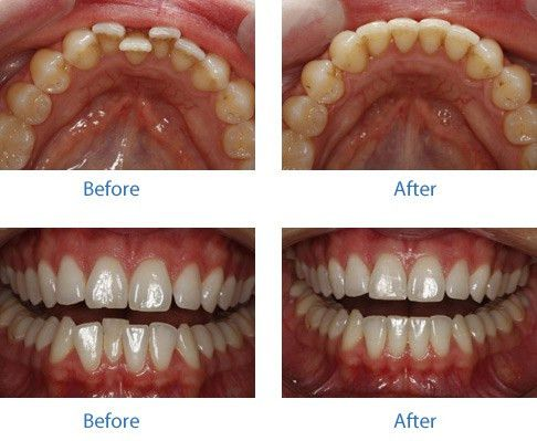 Orthodontic Treatment For Crooked Teeth – The Perfect Smile is ...