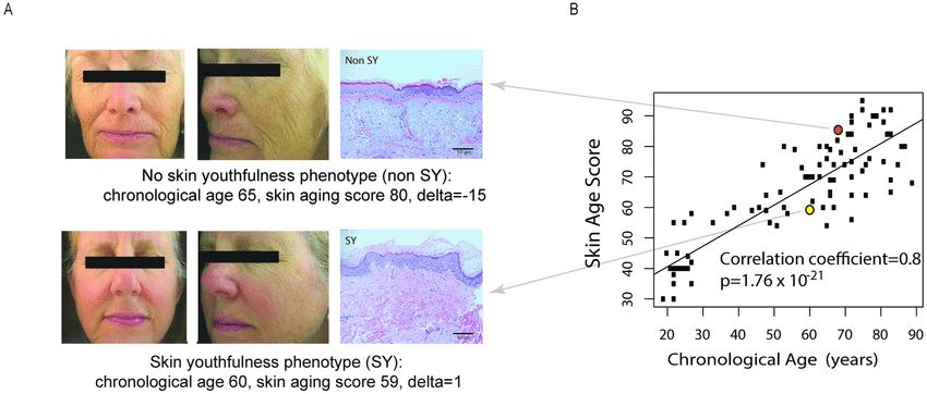 Determination of the skin youthfulness (SY) phenotype. (A) Example ...