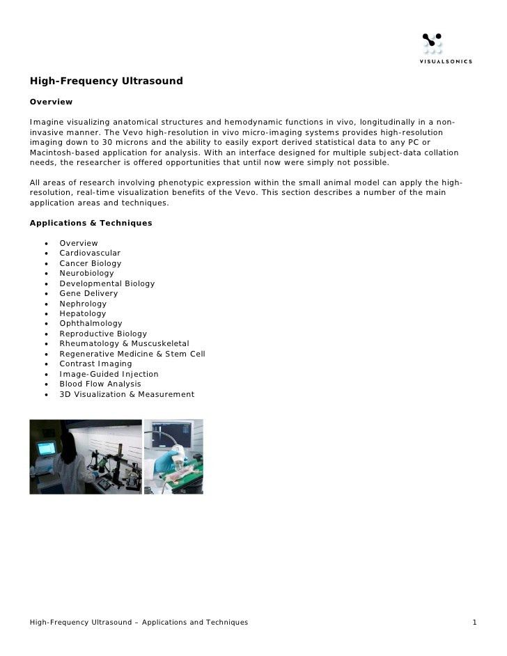 High-Frequency Ultrasound Application: Features & Benefits