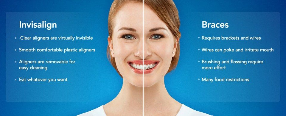 Memphis Braces Blog | Saddle Creek Ortho | Dr. Kyle Fagala - Page 7