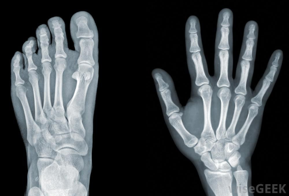 What Does an X-Ray Technician Do? (with pictures)