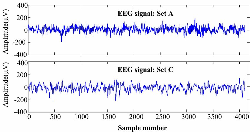 Example of EEG signal from set A (Healthy) and set C (Epileptic ...