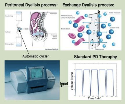 Automated Peritoneal Dialysis: In APD a cycler machine ...