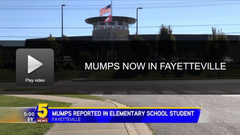 Arkansas hit by mumps outbreak - only among the vaccinated ...