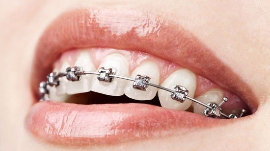 Orthodontist Job Description - Healthcare Salary World