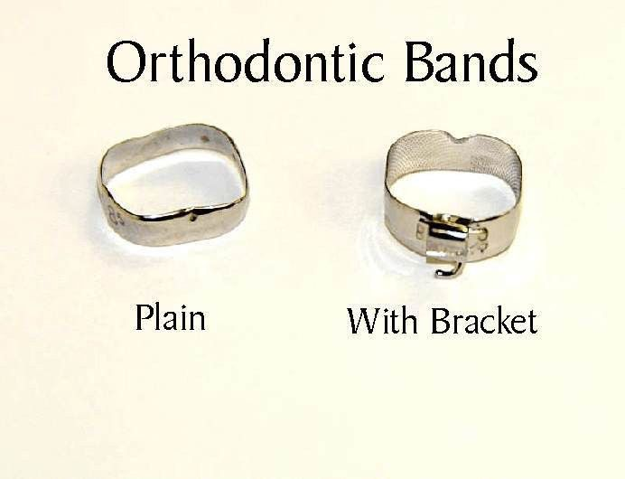 What are Separators, Spacers and Orthodontic Bands? | Ask an ...