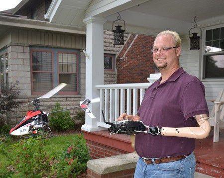 Prosthetic Arm Indiana, Illinios & Wisconsin | SRT Prosthetics ...