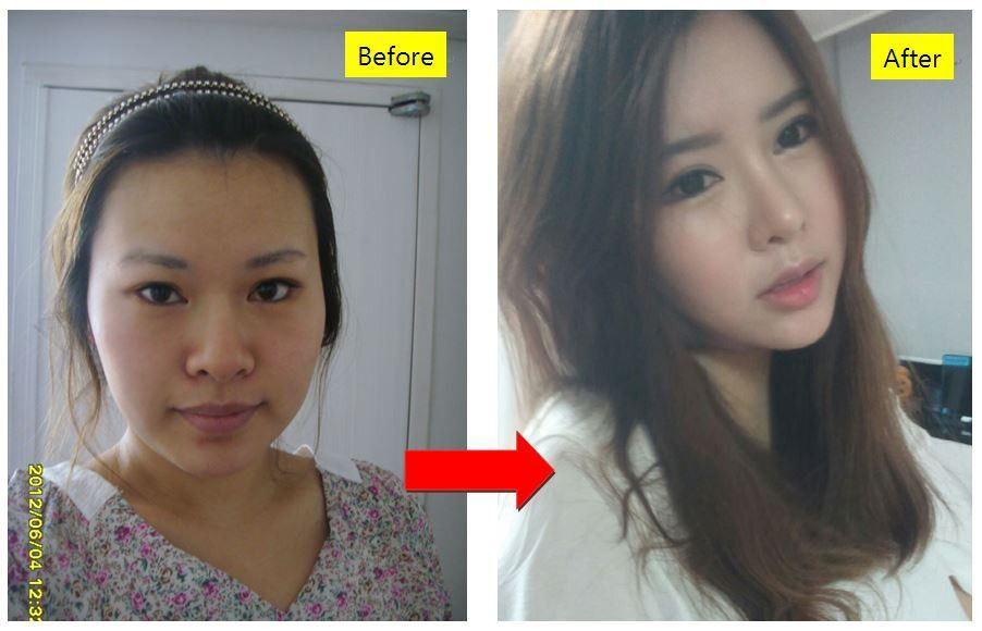 Korean plastic surgery, plastic surgery in korea, cosmetic surgery ...