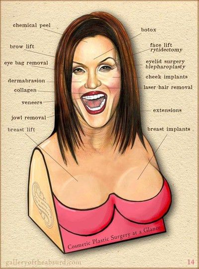 Gallery of the Absurd: Bad Cosmetic Surgery