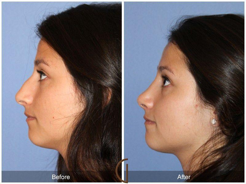 Teenage Rhinoplasty Nose Job Teen Cosmetic Surgery Facial Plastic ...