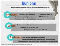 Bunions by Dr. Salma