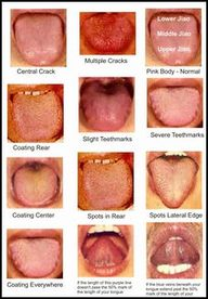 Tongue diagnosis, is