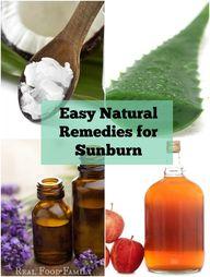 sunburn remedies and