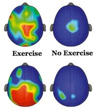 Exercise Is ADHD Med