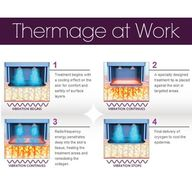 How thermage works o