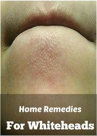 Home Remedies For Wh