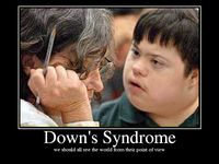 Individuals with Down syndrome have 47 chromosomes instead of the usual 46. It is the most frequently occurring chromosomal disorder. Down syndrome is a genetic disorder that causes lifelong mental retardation, developmental delays and other problems. Down syndrome is not related to race, nationality, religion or socioeconomic status. The most important fact to know about individuals with Down syndrome is that they are more like others than they are different.