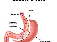 All things gastric sleeve