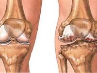Artritis (Arthritis)
