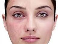 Rosacea Skin Products / by London