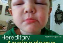 Hereditary Angioedema / by Melissa Bettencourt