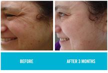 REDEFINE - Before / After Gallery of Rodan + Fields customers who use REDEFINE, our product for redefining the way people age. / by Angela Johnson