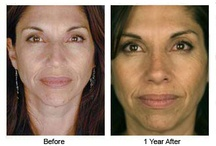 Rhinoplasty Before & After / by Dr. Paul Nassif