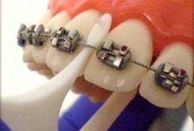 Braces! / by mariana hidalgo