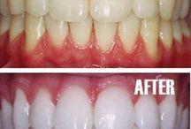 white teeth :-D / by Tara Condron