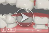 Crowns, Root Canal Treatment & Bridges, Inlays & Onlays (Restorative Care) / When a tooth is fractured, has a large old filling, or is severely damaged by decay, your dentist may recommend the placement of a crown. Crowns strengthen and protect the remaining tooth structure and can improve the appearance of your smile.   Types of crowns include the full porcelain crown, the porcelain-fused-to-metal crown (precious & non-precious) and the all-metal crown.  / by Dental Health Center
