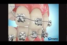Braces / by Dental USA