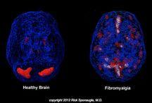 Fibromyalgia and Migraines / by Olivia Adams