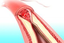 Arteries / by G T