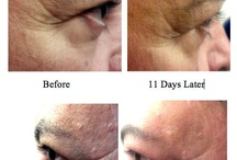 wrinkleproofyourskin.com / Find out about Nerium AD, the first anti-aging product that is creating REAL results for people. Within as early as 7 days people are seeing a reduction in the appearance of fine-lines, wrinkles, deep lines, hyper-pigmentation spots, age spots, etc. Try a free 7 day sample for yourself!   Just contact me via the links below:  wrinkleproofyourskin.com  or http://www.facebook.com/wrinkleproofyourskin / by Stefanie Gass