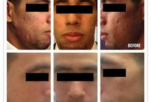 Before & After Photos / Here are photos of actual Vivant Skin Care clients and the dramatically positive effects our regimens have on their skin! / by Vivant Skin Care