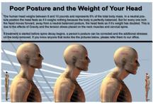 Posture issues.  / by Amra Cuhelova