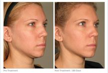 Ultherapy / Lift and tighten the face and neck using Ultrasound! No downtime! No surgery!  / by Karen Lauridsen