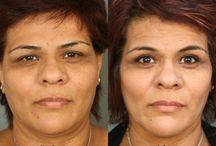 Eye Lift & Brow Lift Before & Afters / See how these procedures can help you achieve a more refreshed and youthful appearance. / by Dr. Paul Nassif