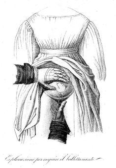 Victorian illustration of pregnancy examination