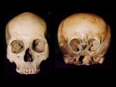 THE STARCHILD SKULL is a genuine 900-year-old bone skull found in Mexico in the 1930s. The Starchild Project is an informal organization which began in 1999 when Ray and Melanie Young, the owners of the Starchild Skull, asked Lloyd Pye to head research efforts to determine what caused the unusual shape and properties of the bone.