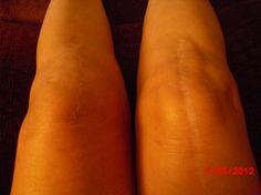 Picture taken looking down while sitting:    Right knee (longer scar) was from Cartilage Transplant Surgery in 2000. The TKR scar that was done in 2008 is imbedded in the long scar and hardly visible.     The left knee is from my recent TKR surgery seven weeks out, and seems to be healing nicely. What a difference!!!    Various smaller scars are from scopes and lateral releases & surgeries done throughoutt the 1990's.